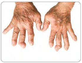Görsel 2.28 Kronik romatoid artiritis