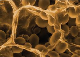 Görsel 2.35 Patates hücrelerindeki lökoplastın elektron mikroskobunda 35.000 kez büyütülmüş görüntüsü
