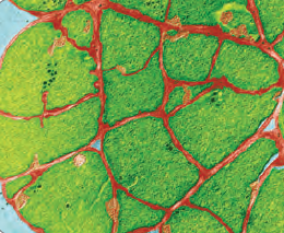 Görsel 3.23 Metanojen arke (Methanosarcina rumen)