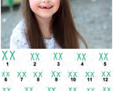 Down sendromu 21. kromozomun bir fazlalığı sonucu oluşur.