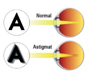 Astigmat göz yapısı
