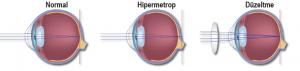 Hipermetrop göz yapısı ve düzeltilmesi