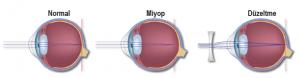 Miyop göz yapısı ve düzeltilmesi