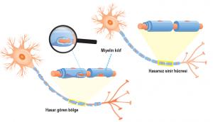 Multiple sklerozda ve normal sinir hücresinde miyelin kılıf yapısı