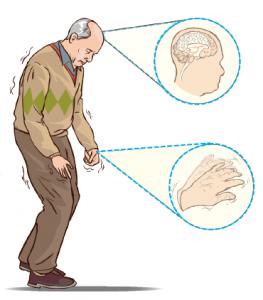 Parkinson hastası