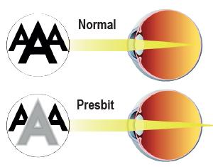 Presbit göz yapısı