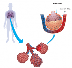 Alveollerde iltihaplanma ve zatürre oluşumu