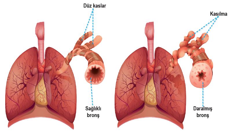 Astıma bağlı olarak akciğerde solunum yollarında daralma