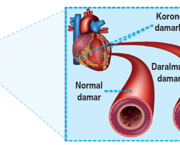 Kalp damarlarındaki daralma